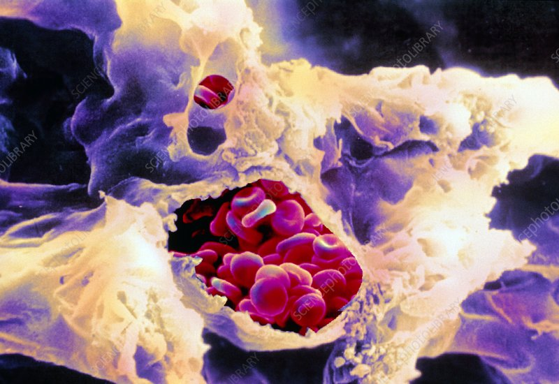 Coloured SEM of red blood cells in arteriole