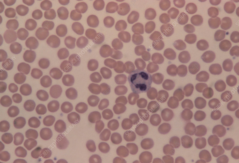 LM of human blood smear showing red & white cells
