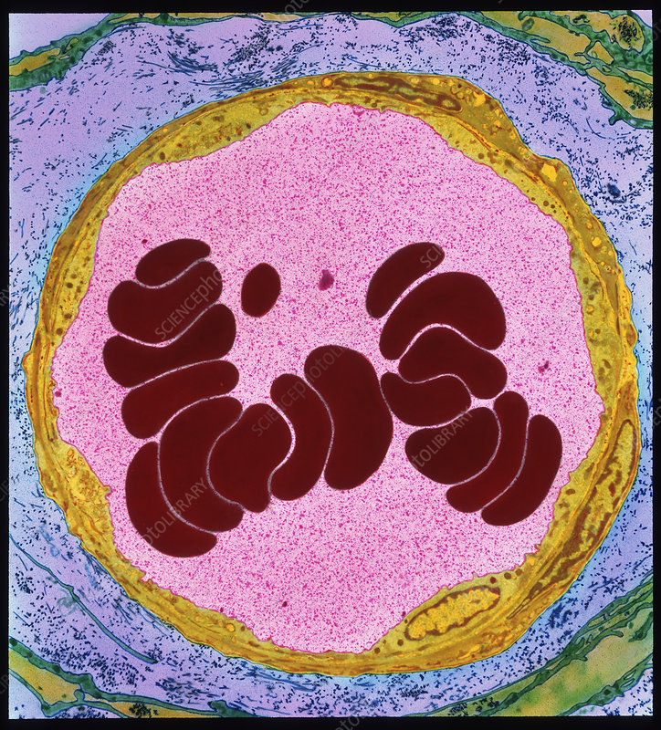 Coloured TEM of red blood cells in an arteriole