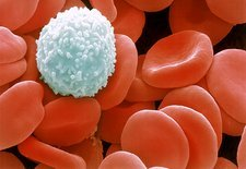 Colour SEM of red & white blood cells