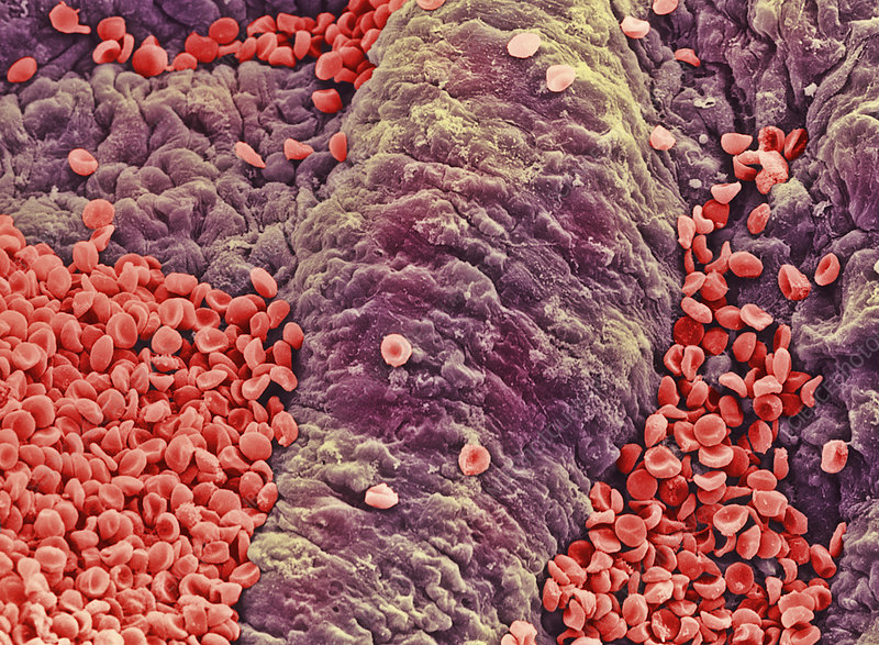 Coloured SEM of red blood cells on vessel wall