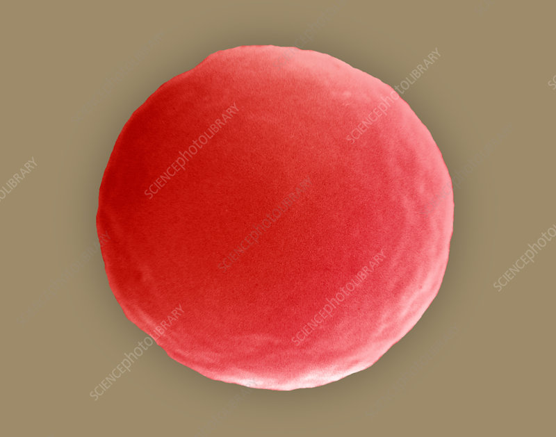 Red blood cell in hypotonic solution