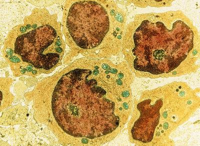 False-colour TEM of a group of human lymphocytes