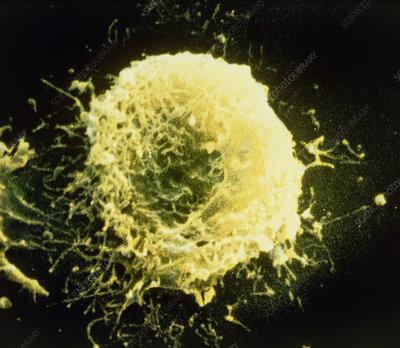 False-colour SEM of a human granulocyte