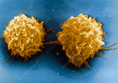 Coloured SEM of a T-lymphocyte white blood cell
