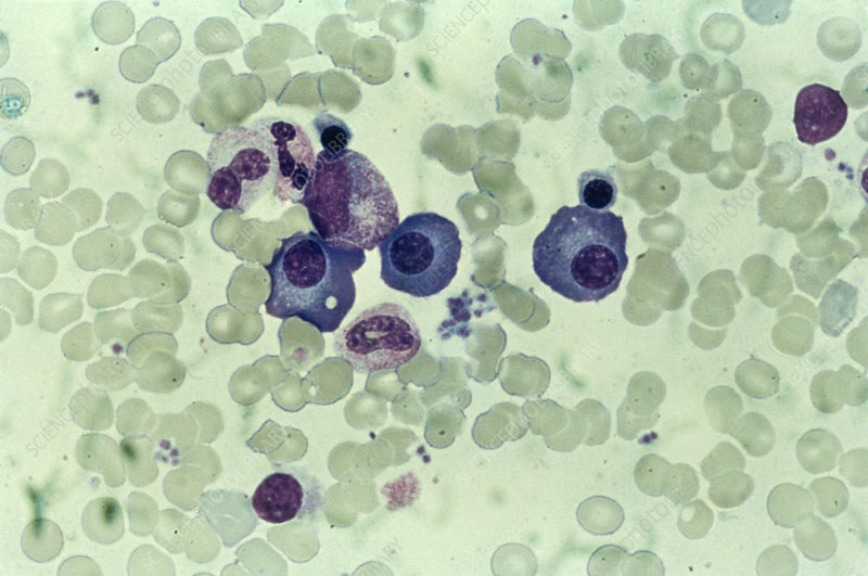 LM of a blood smear showing white blood cells