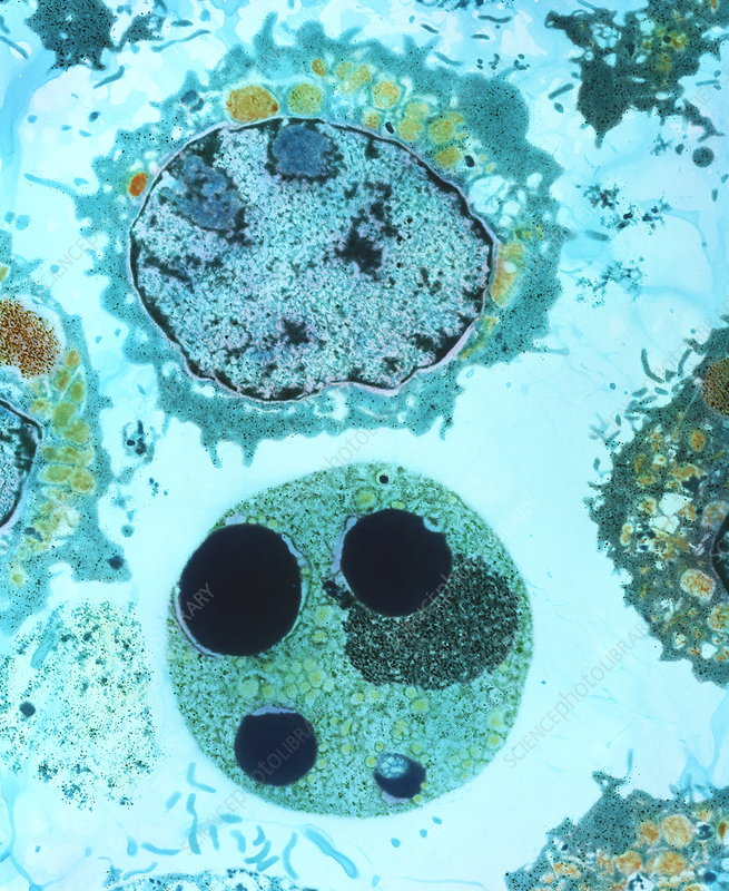 Colour TEM of myeloid blood cell during apoptosis