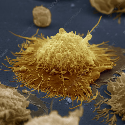 Coloured SEM of a B-lymphocyte white blood cell