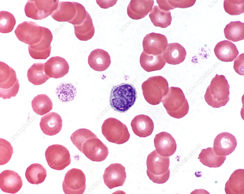 Small lymphocyte