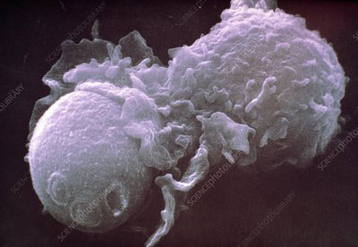 SEM of cultured lymphocyte engulfing a yeast cell