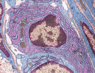 Plasma cell, TEM