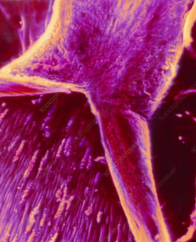 Coloured SEM of platelets on blood vessel wall