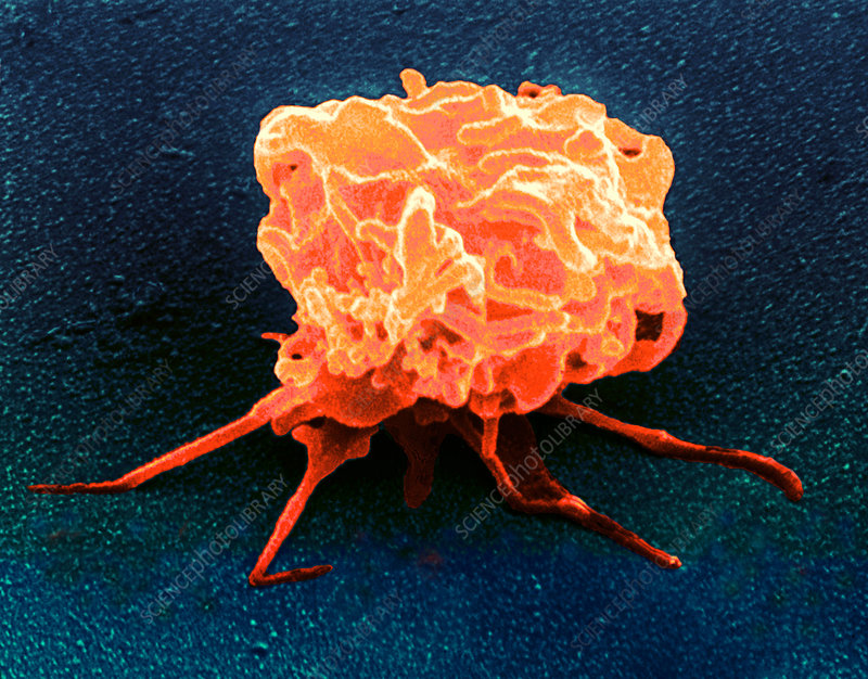 Coloured SEM of an activated blood platelet