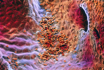 False-colour SEM early clot formation in