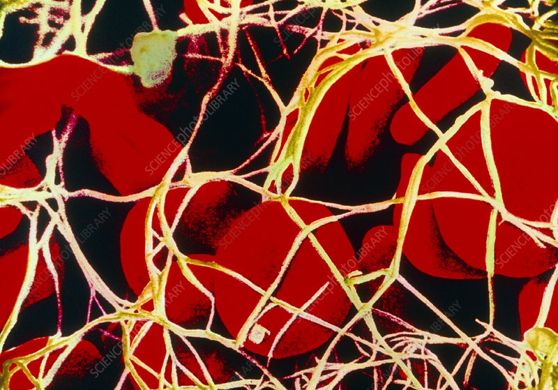 Coloured SEM of red blood cells tangled in fibrin