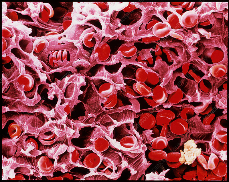 Coloured SEM of a blood clot due to an injury