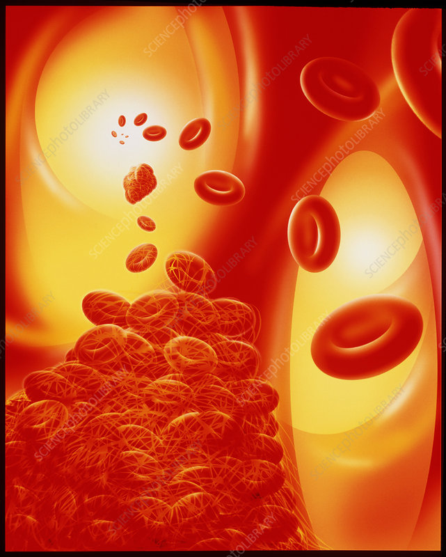 Computer artwork of a blood clot