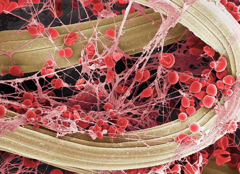 Blood clot on plaster, SEM