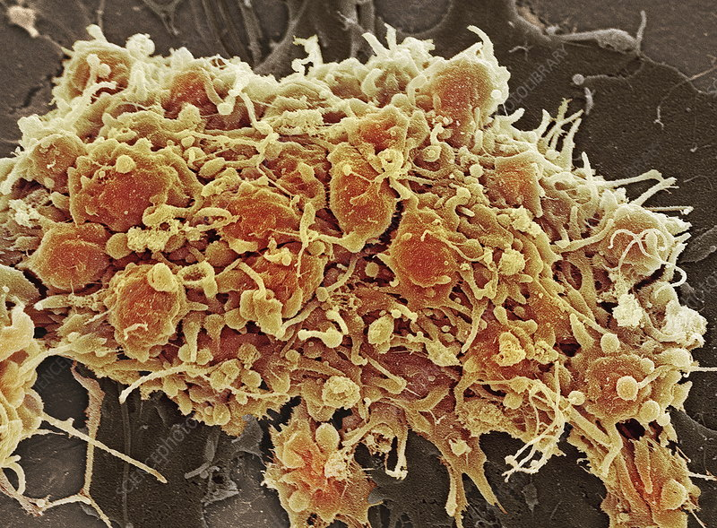 Platelets in a blood clot
