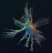 Colour SEM of dendritic immune cell