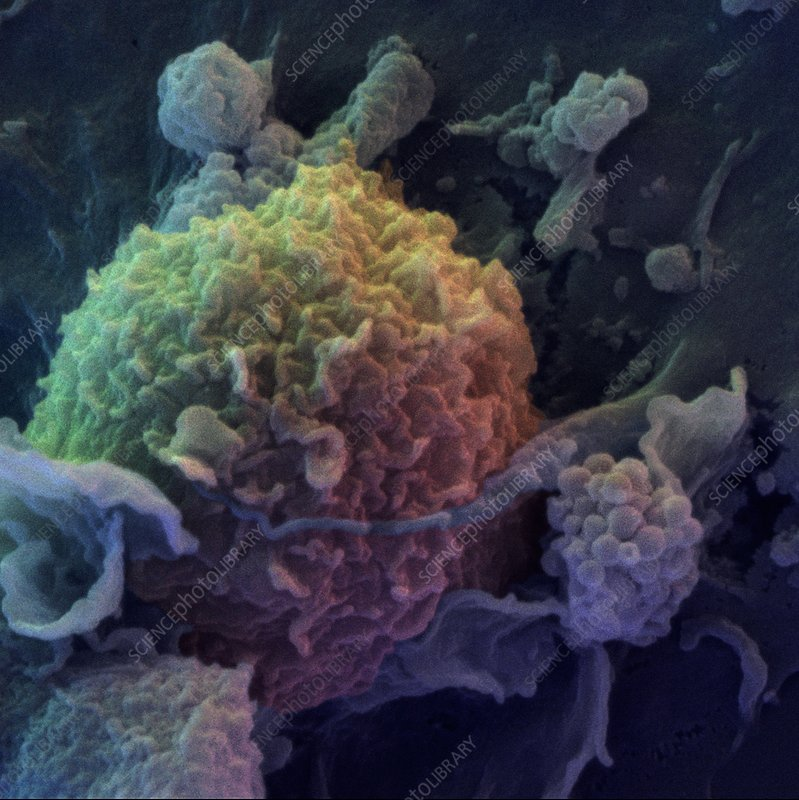 Colour SEM of immune cells: dendritic and T-cells