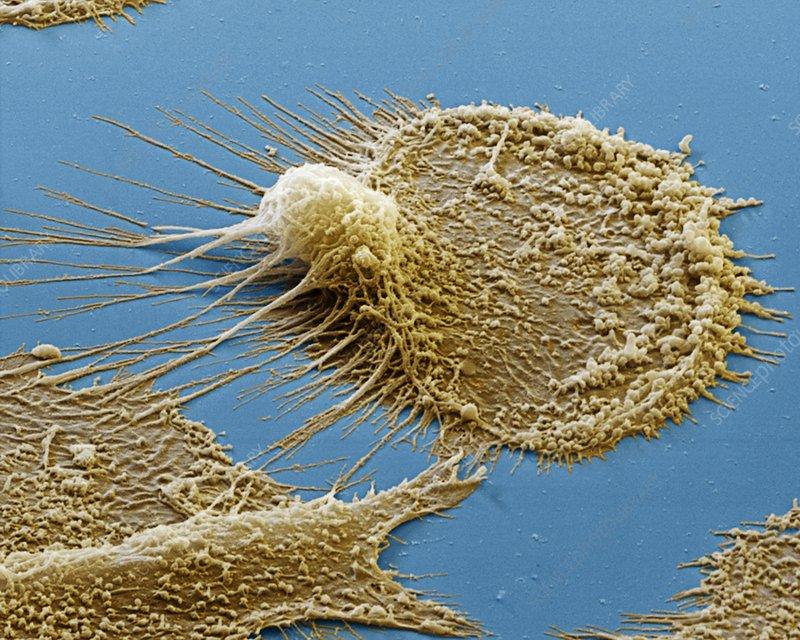 Dendritic cell, SEM