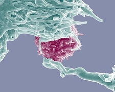 Dendritic cell and lymphocyte, SEM