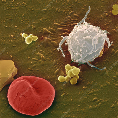 Blood cells and bacteria, SEM