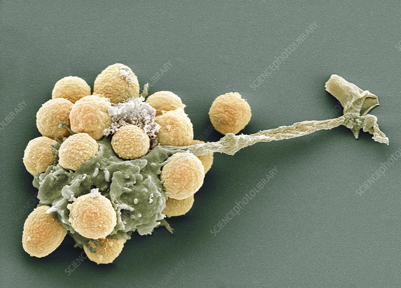 Phagocytosis of fungal spores, SEM