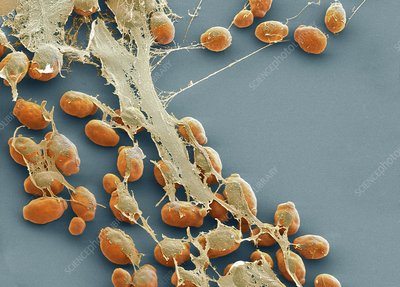 NETs trapping yeast spores, SEM