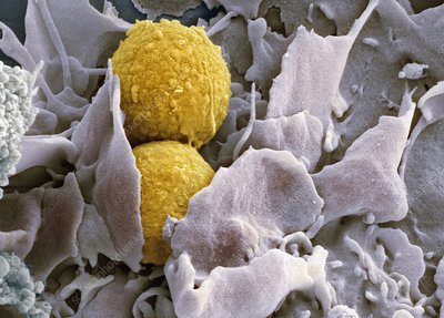 Phagocytosis of fungus spores, SEM