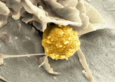 Phagocytosis of a fungus spore, SEM