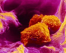 False-colour SEM of three macrophages in lung