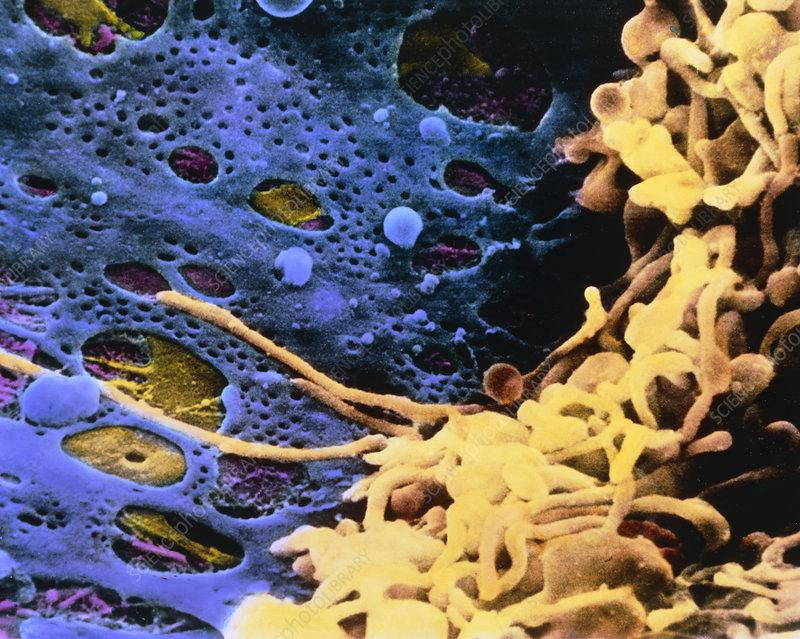 False-colour SEM of Kupffer cells in the liver