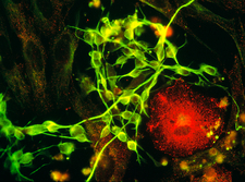 Immunofluorescent LM of macrophage in brain tissue