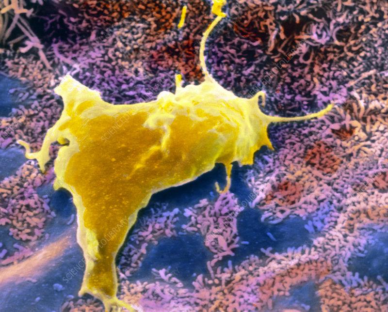 SEM of a migrating macrophage