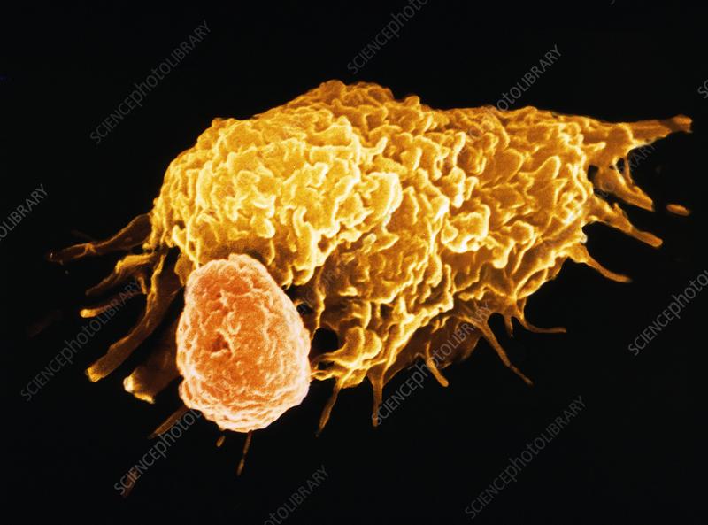 False-colour SEM of a macrophage & lymphocyte