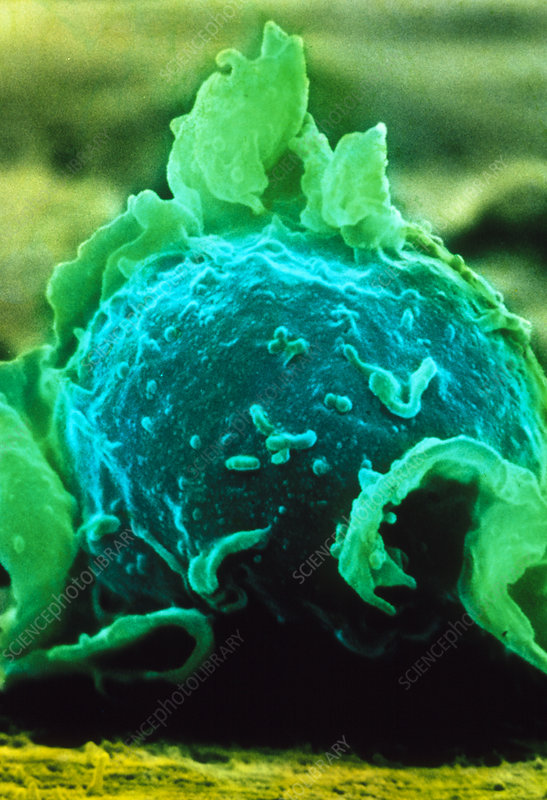 False-colour SEM of a macrophage on lung tissue