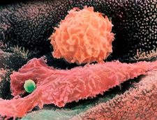 Macrophages in lung
