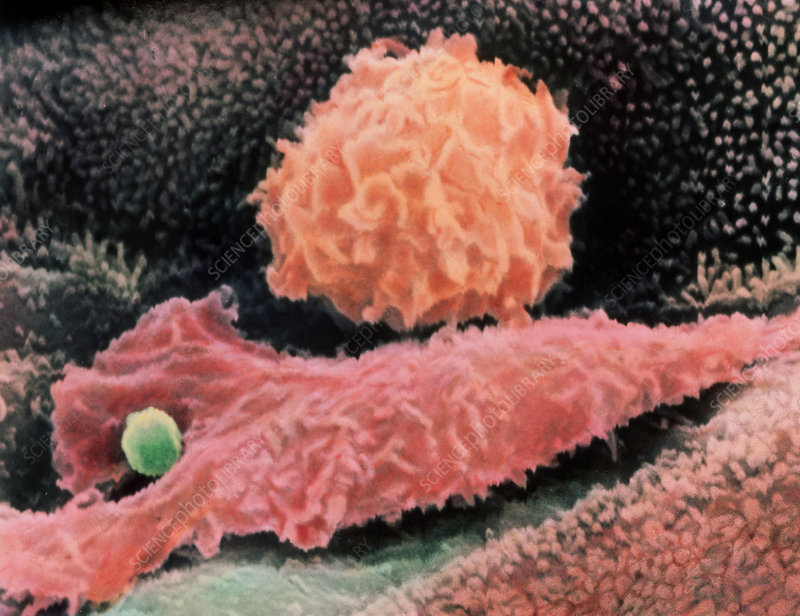 Macrophages in human lung, SEM