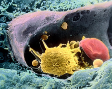 Coloured SEM of a monocyte in a blood capillary