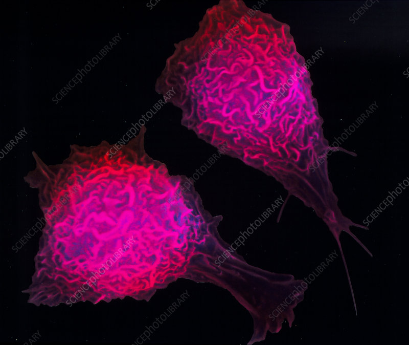 Coloured SEM of active macrophage cells