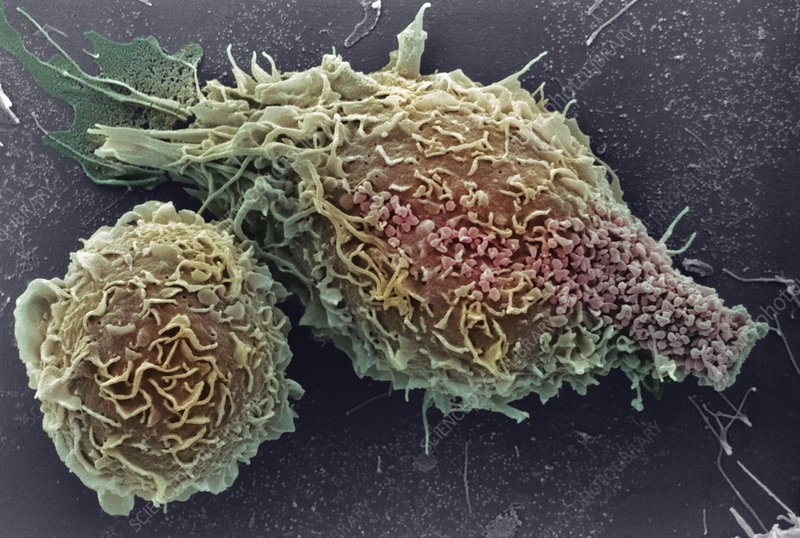 Macrophages, SEM