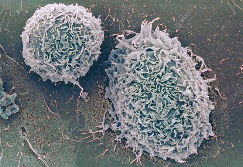 White blood cells, SEM