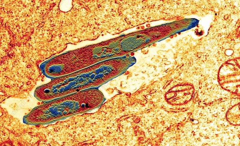 Macrophage cell engulfing bacteria, TEM