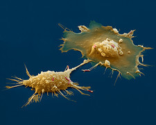 Macrophages engulfing E. coli, SEM