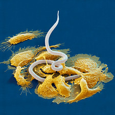 Macrophages attacking parasite, SEM