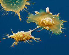 Macrophages attacking bacteria, SEM