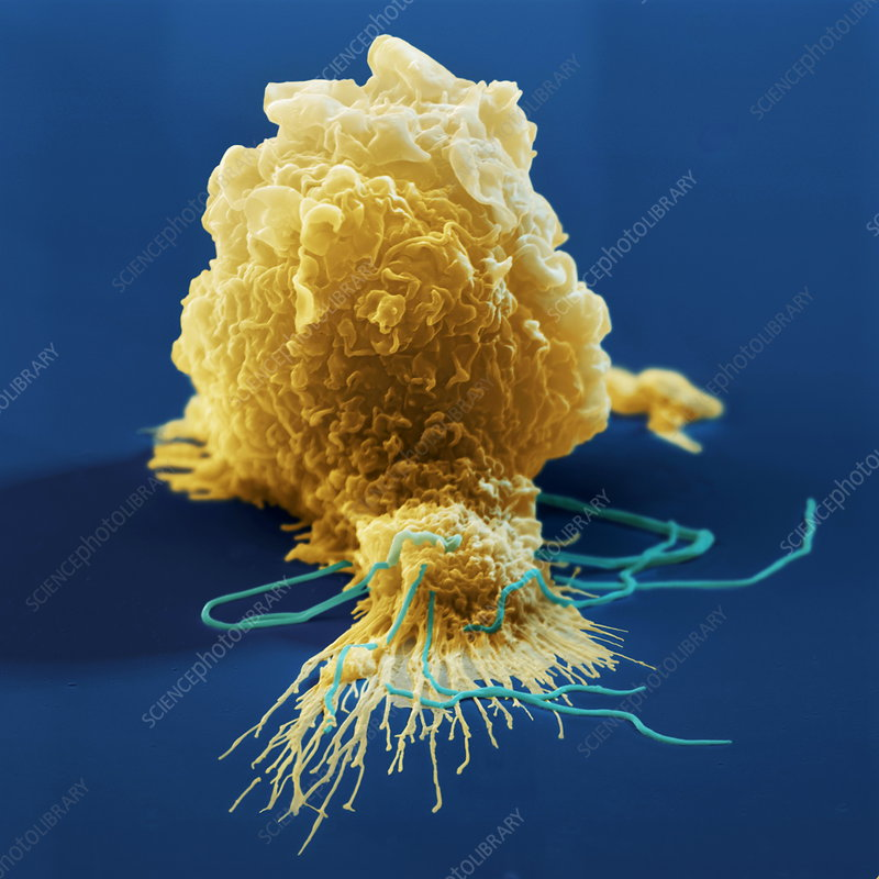 Macrophage attacking bacteria, SEM