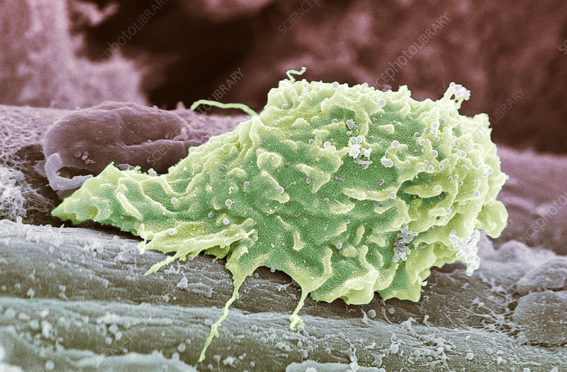 Macrophage white blood cell, SEM
